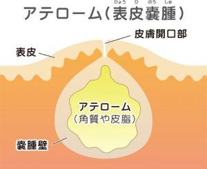 神戸 粉瘤・脂肪種の日帰り手術|つねみ医院