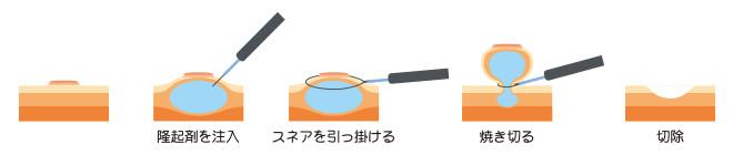 3.内視鏡的粘膜切除術(EMR)